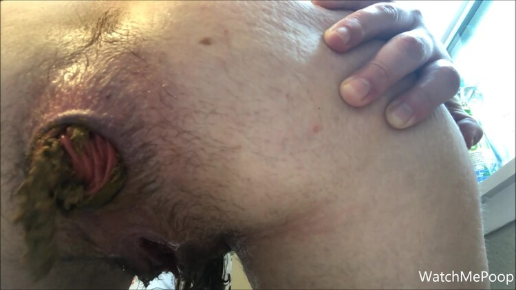 AmateurShitClips - Close Up Prolapse Poop